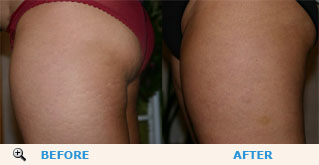 Mary reduced cellulite on her thigs just in one month